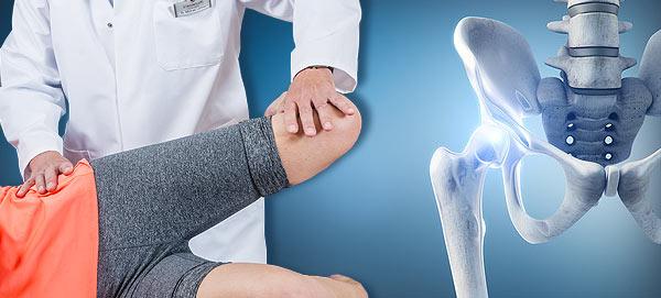 Hüftkopfnekrose: Ursachen, Diagnostik, Vorgehen aktuell