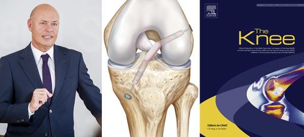 Dr. Franz: Studie im Journal The knee
