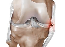 Knieschmerzen beim Treppensteigen – was hilft?