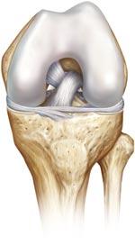 Weg nach knie knickt hinten Knieschmerzen: Ursachen,