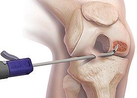 Kniearthrose - Behandlung
