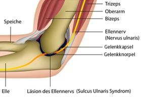 Ellenbogen-OP: Ein Überblick der Ellenbogenchirurgie